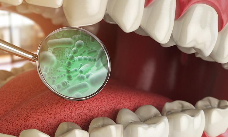 Unveil the secrets of oral microbiota
